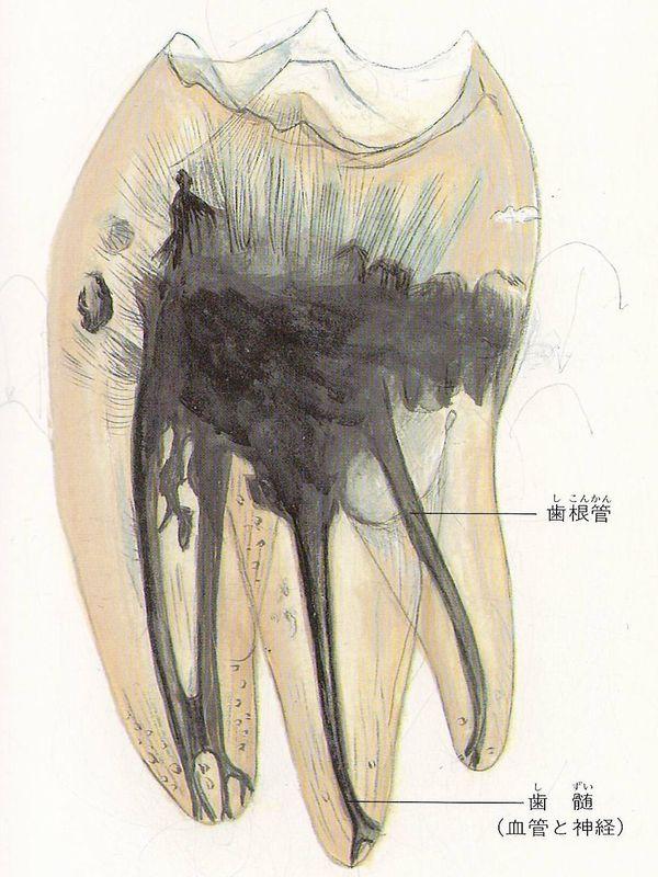 横浜の歯科・歯医者 横浜山手デンタルクリニック 神経の治療
