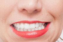 歯科 くいしばりのイメージ