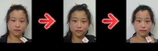 横浜 歯科・歯医者 横浜山手デンタルクリニックお顔の左右非対称になり-目も大きくなり小顔になった患者様