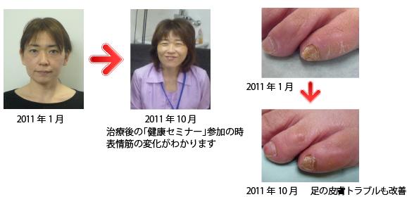 横浜 歯科・歯医者 横浜山手デンタルクリニック顔だけではなく皮膚の悩みも改善された患者様