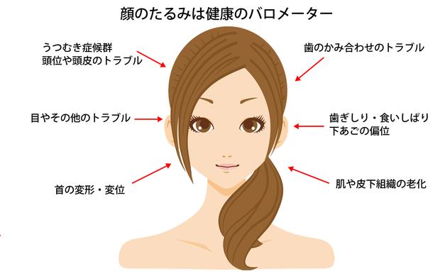 横浜 歯科・歯医者 横浜山手デンタルクリニック 顔面左右非対称性症候群が引き起こすトラブル
