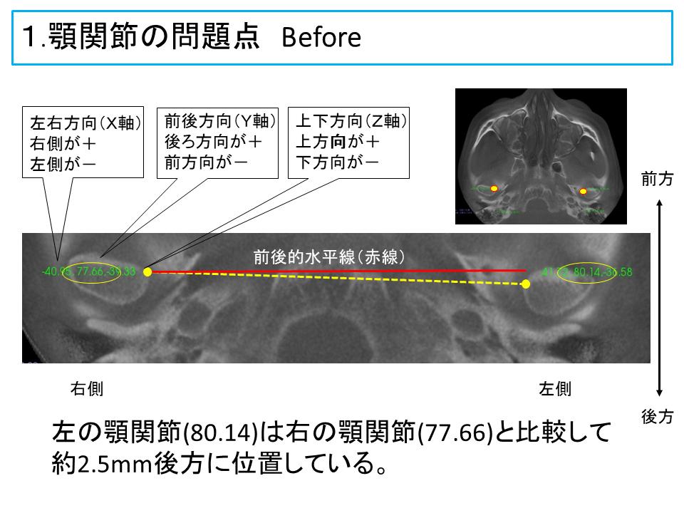 横浜市中区の歯科・歯医者 横浜山手デンタルクリニックTALK画像 顎関節の問題点治療前