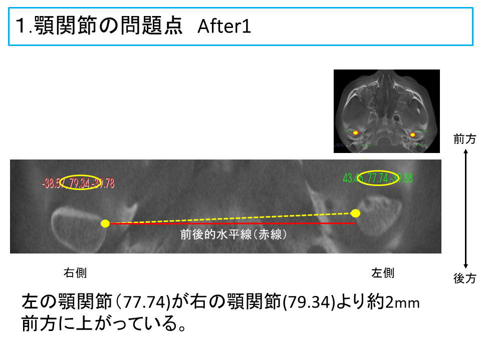 横浜市中区の歯科・歯医者 横浜山手デンタルクリニックTALK画像 顎関節の問題点治療後1