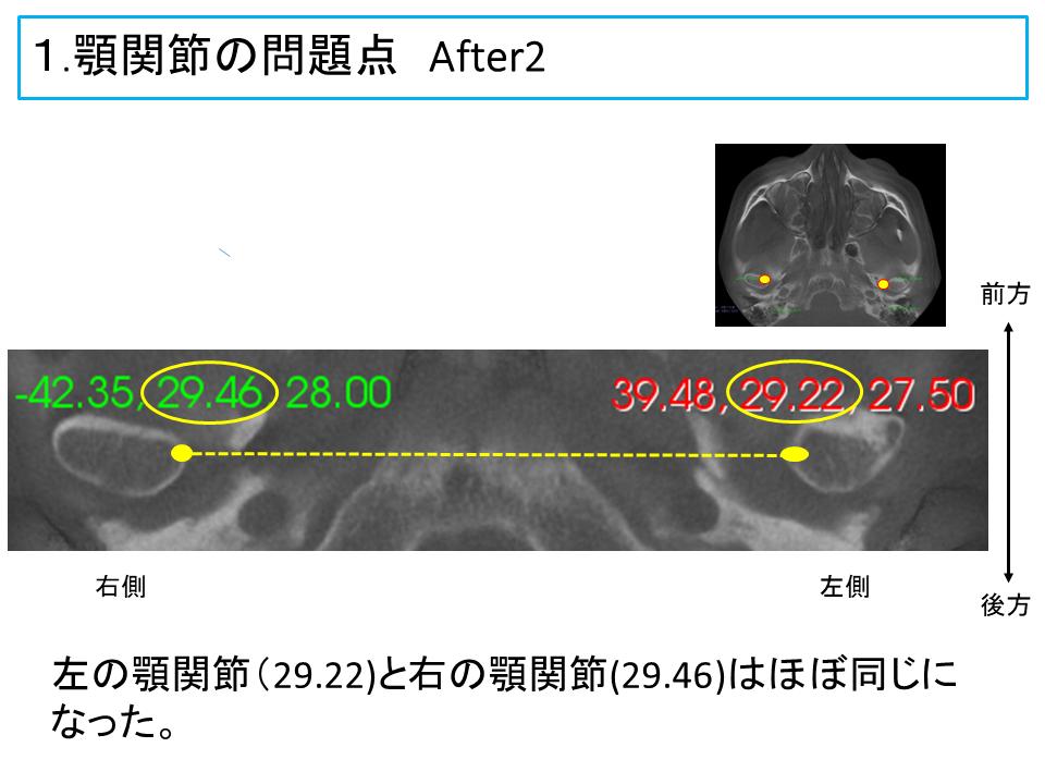 横浜市中区の歯科・歯医者 横浜山手デンタルクリニックTALK画像 顎関節の問題点治療後2