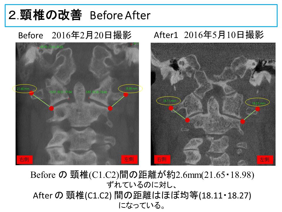 横浜市中区の歯科・歯医者 横浜山手デンタルクリニックTALK画像 頸椎の改善治療前と治療後