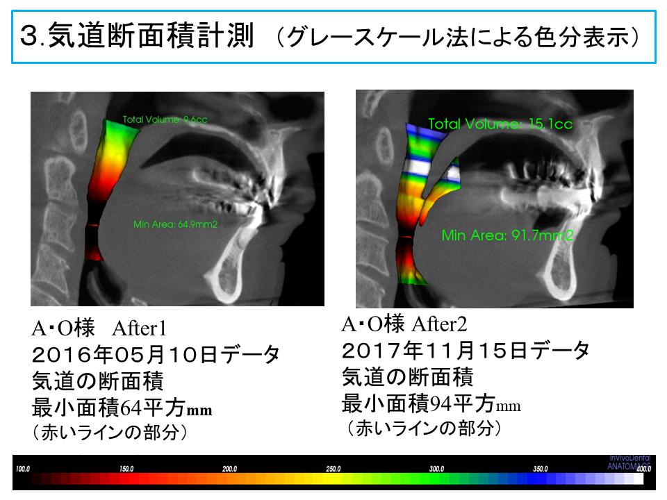 横浜市中区の歯科・歯医者 横浜山手デンタルクリニックTALK画像 気道断面積計測 (グレースケール法による色分表示)