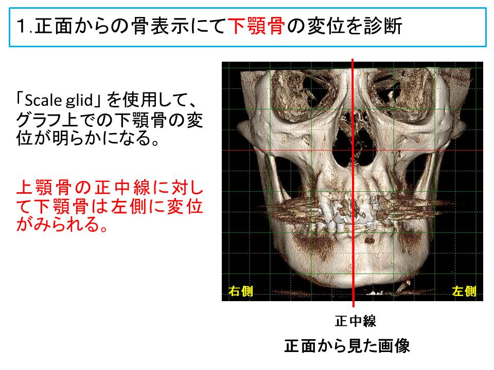 横浜市中区の歯科・歯医者 横浜山手デンタルクリニックTALK画像 顔面頭蓋骨、上アゴの骨と下アゴの関係