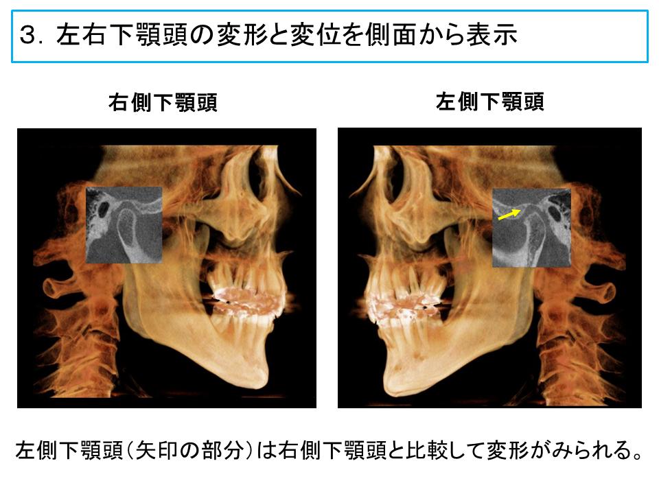 横浜市中区の歯科・歯医者 横浜山手デンタルクリニックTALK画像 左右下顎頭の変形と変位