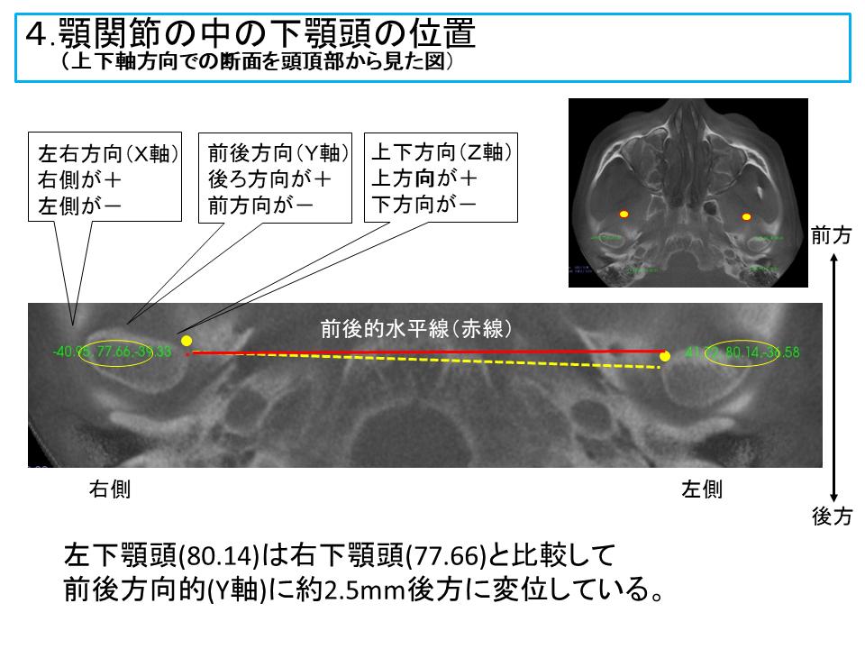 横浜市中区の歯科・歯医者 横浜山手デンタルクリニックTALK画像 顎関節の中の下顎頭の位置