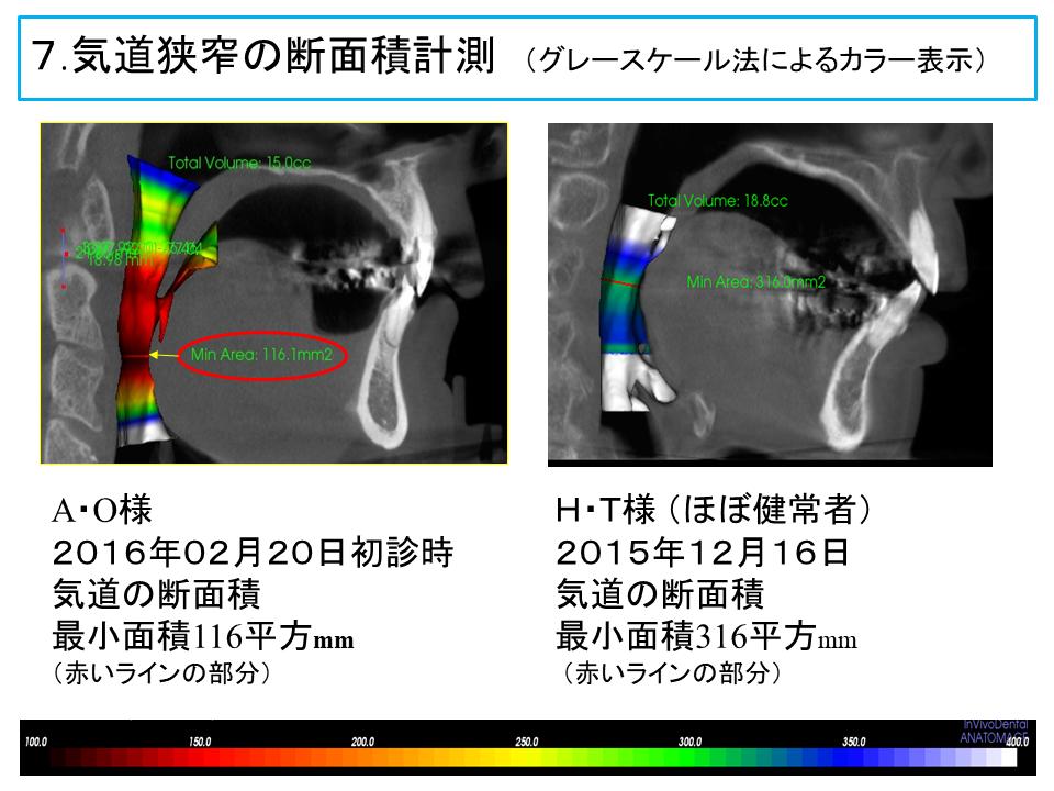 横浜市中区の歯科・歯医者 横浜山手デンタルクリニックTALK画像 気道狭窄の部位の断面積計測