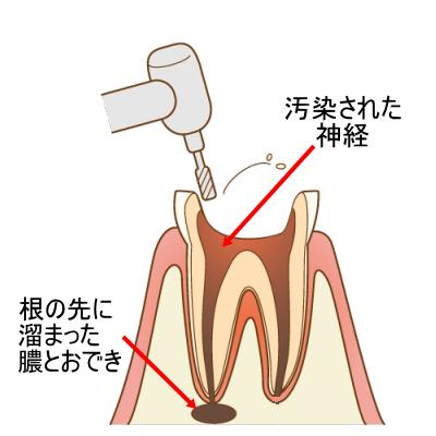 横浜市中区の歯科・歯医者 横浜山手デンタルクリニック 神経の治療
