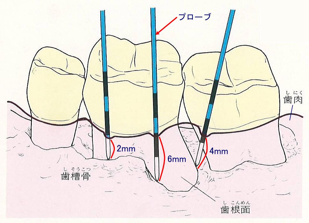 横浜市中区の歯科・歯医者 横浜山手デンタルクリニック 歯と歯肉の間からプローブ(探針)を入れて探る