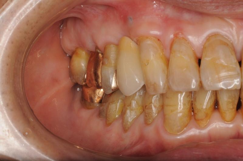 横浜山手デンタルクリニック インプラント・歯の再生治療後