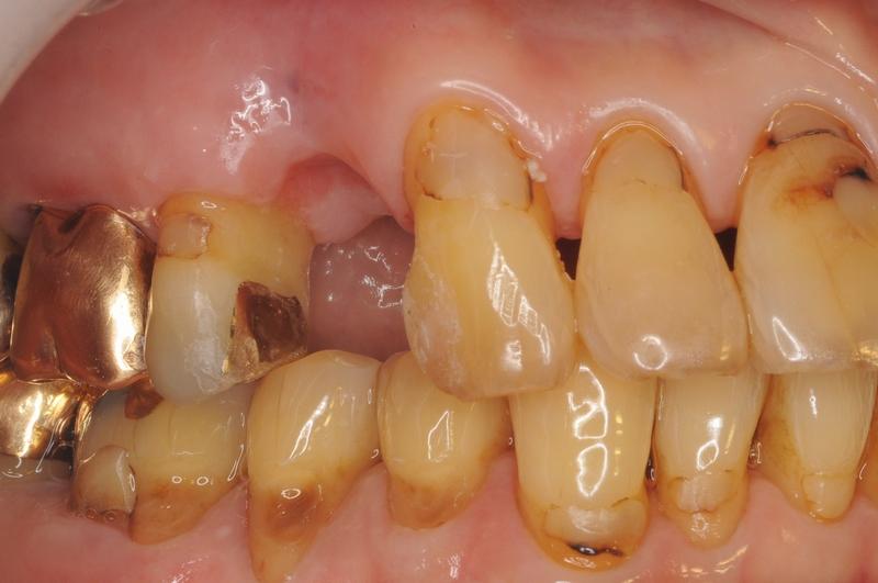 横浜山手デンタルクリニック インプラント・歯の再生 治療前