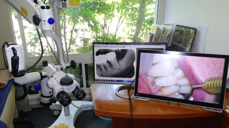 横浜山手デンタルクリニック 手術用顕微鏡と治療動画