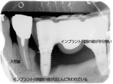 横浜山手デンタルクリニック インプラント歯周炎、歯周病 患者レントゲン