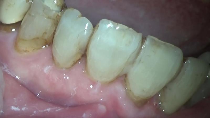 横浜の歯科・歯医者の横浜山手デンタルクリニック 歯肉退縮治療 After